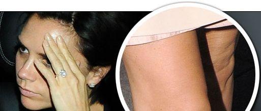 Victoria ex spice girl-cellulite ginocchia e cosce
